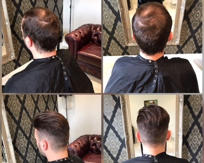 Mans Hair System applied - before and after