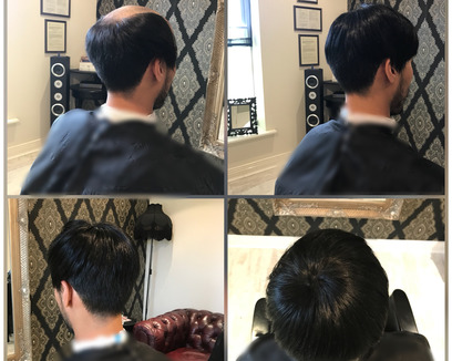 Man recieving a new hair piece at KA Hair Solutions studio in Dublin