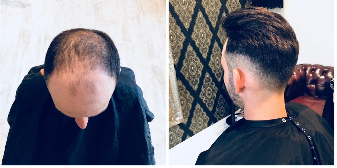 Men's hair loss – six quick facts on hair replacement systems