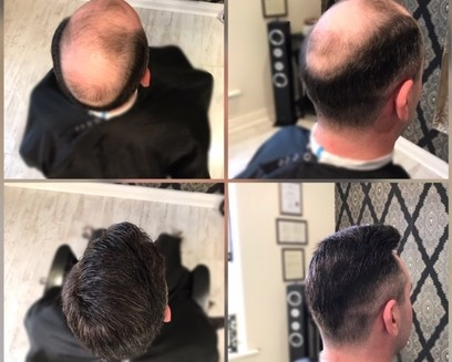 Mens hair system fitted by KA Hair Solutions Ireland