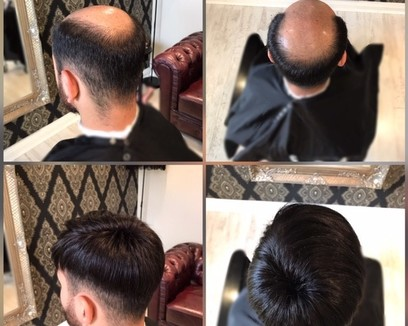 Hair system for men - Before and After - KA Hair Solutions Dublin