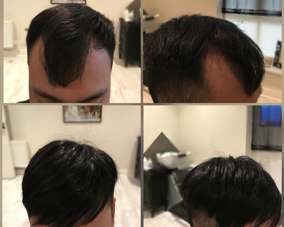 Man receiving a new hair system at Ka Hair Solutions Dublin
