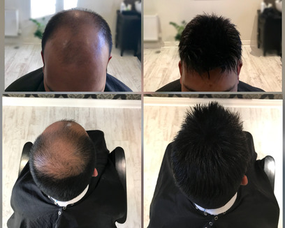 Man before and after a new hair piece is applied in KA Hair Solutions studio in Ireland